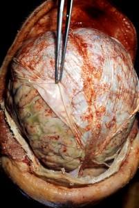 Autopsi otak