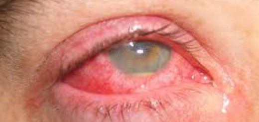 Iritasi mata dan kulit
