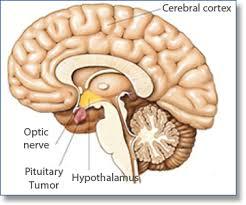 tumor pituitari (hipofisis)