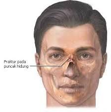 Tulang Hidung