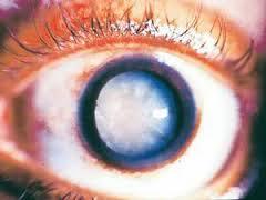 Mata katarak merupakan akibat sindrom patau